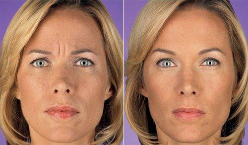 женщина фото до и после Ботокса отзывы
