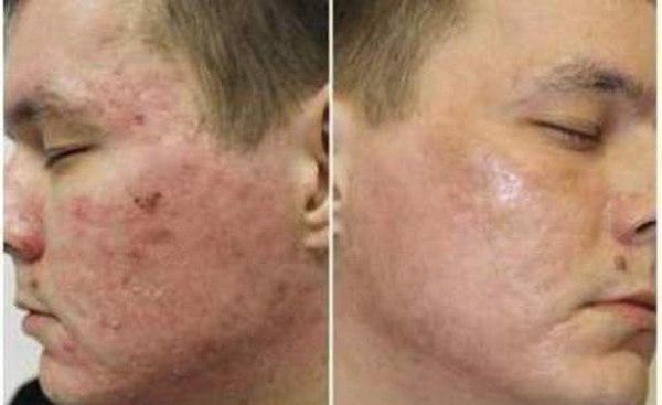 Фото до и после курса процедур плазмолифтинга №1