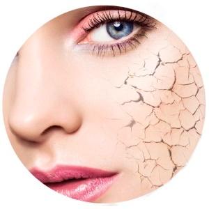 Чтобы устранить сухость кожи необходимо устранить внешний раздражитель
