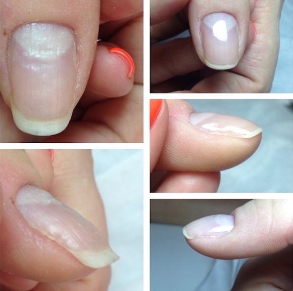 выравнивание ногтя гель лаком