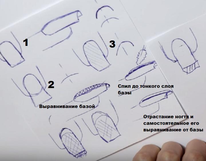 1 - равные ногти, 2 - по форме трапеции, 3 - скрученные с оной стороны