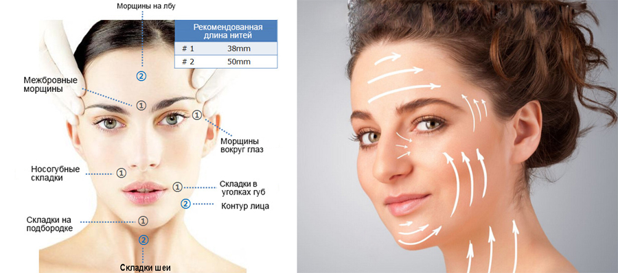 Армирование лица золотыми нитями в косметологии
