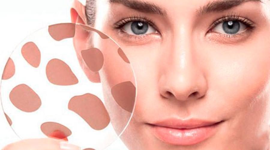 Маска для лица с витамином А способствует удалению пигментных пятен