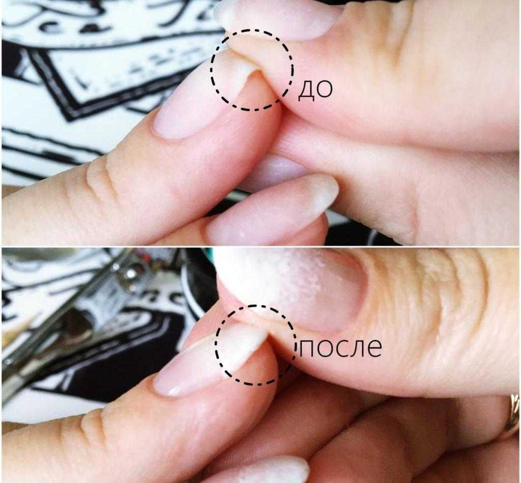 Преимущества акрилового укрепления ногтей