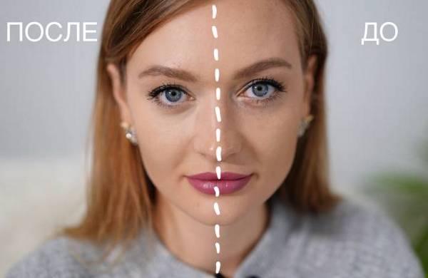 Обе процедуры показаны при появлении синяков под глазами, которые не удаляются иными методами