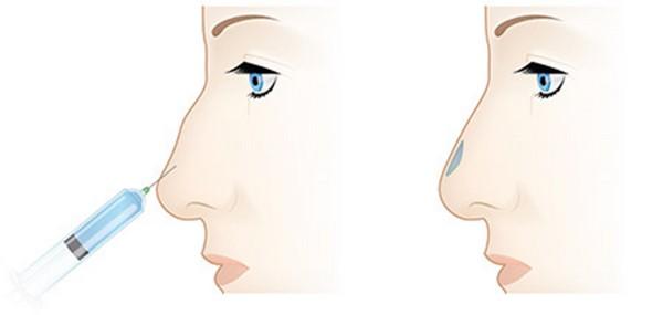 Данная процедура позволяет скорректировать различные проблемы, связанные с внешним видом носа