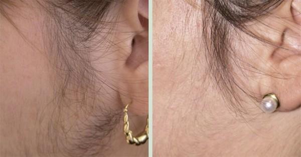 Фото до и после эпиляции неодимовым лазером
