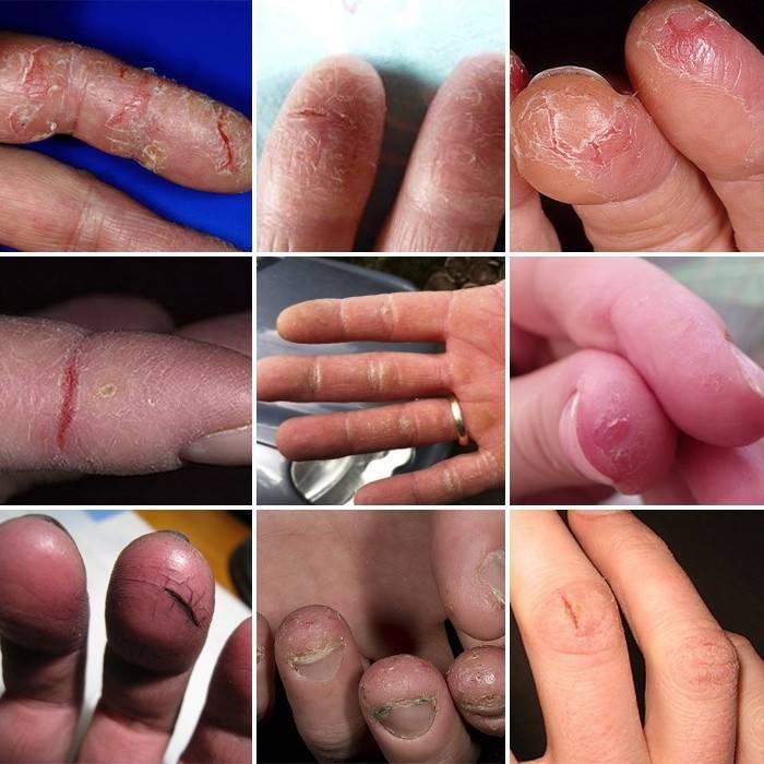 как выглядят трещины на пальцах