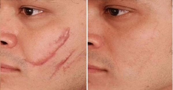 Фото до и после коррекции рубцов неодимовым лазером