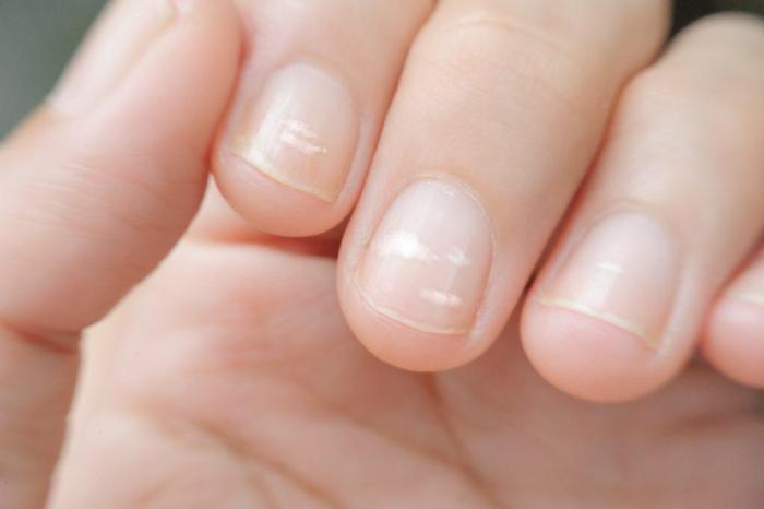 Что говорит Хиромантия о белых пятнах на ногтях (6 фото + видео)