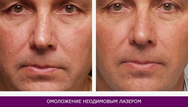 Фото до и после омоложения кожи лица неодимовым лазером