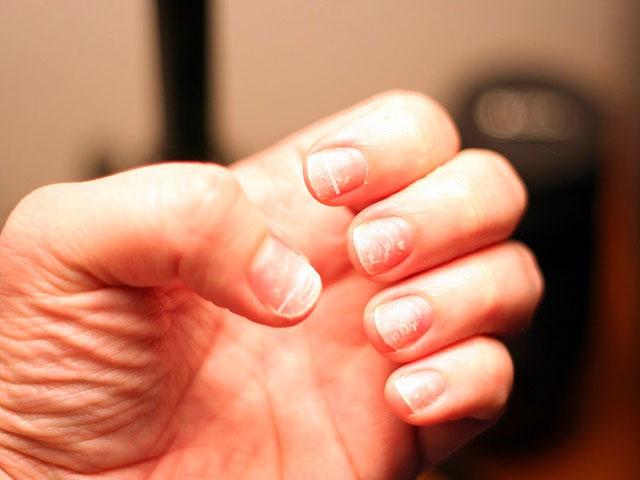 Почему часто ломаются ногти на руках у женщин