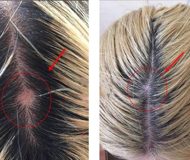 Мезотерапия для волос - что это такое?
