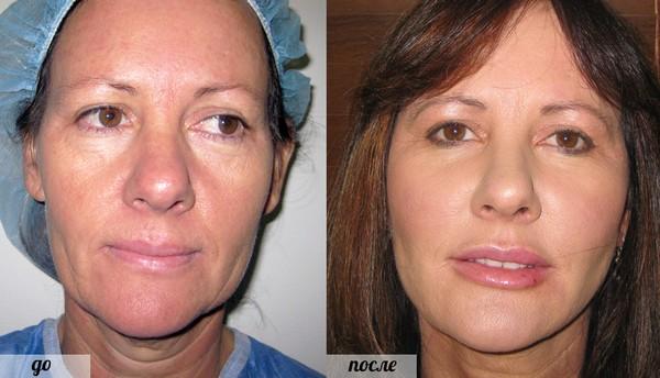После процедуры лицо становится лишь краше