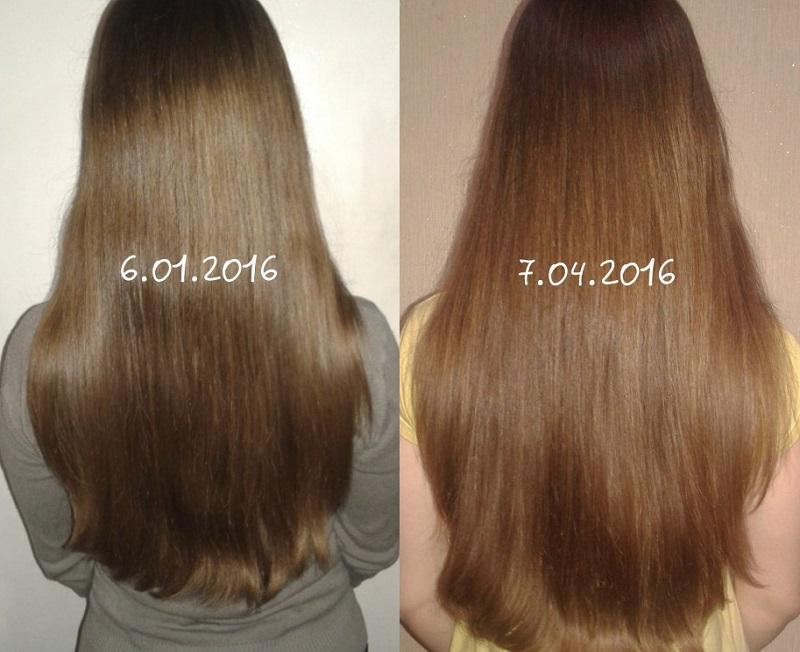 никотиновая кислота для роста волос - результат