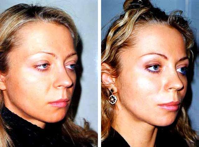 armirovanija-lica-bionitjami-aptos.jpg
