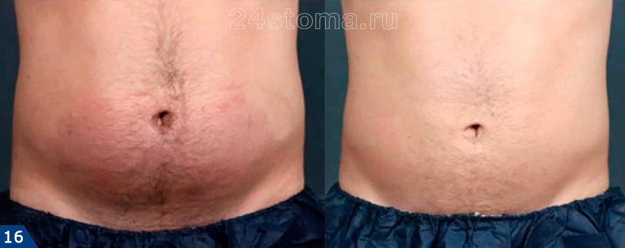 Процедуры мезотерапии: фото до и после