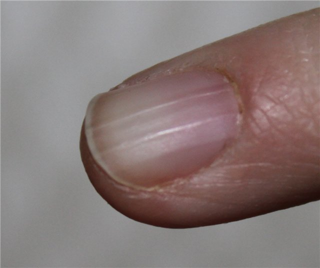 Борозды на ногтях.