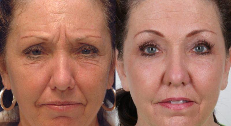 Ботокс для лица: фото до и после
