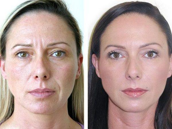Фото до и после процедуры с использованием Ботулакса