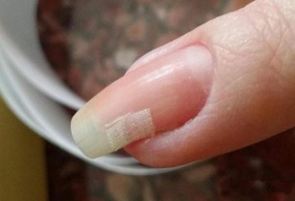 Заплатка на ногте