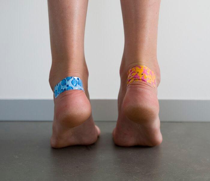 МОЗОЛИ: 7 хитростей, чтобы обувь не натирала