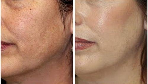 фото до и после Дарсонвализации лица 1