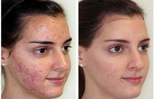 фото до и после Дарсонвализации лица 2