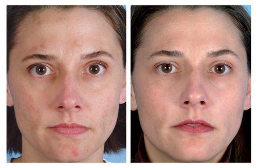 фото до и после Дарсонвализации лица 4