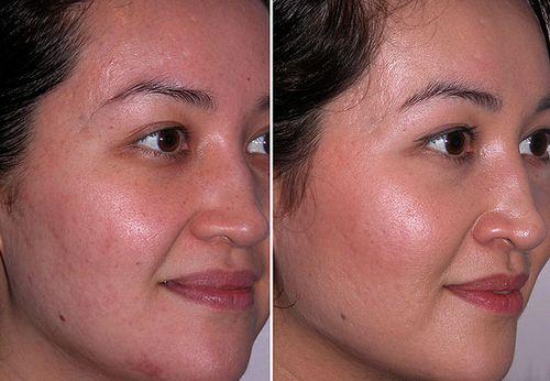 фото до и после Дарсонвализации лица 5