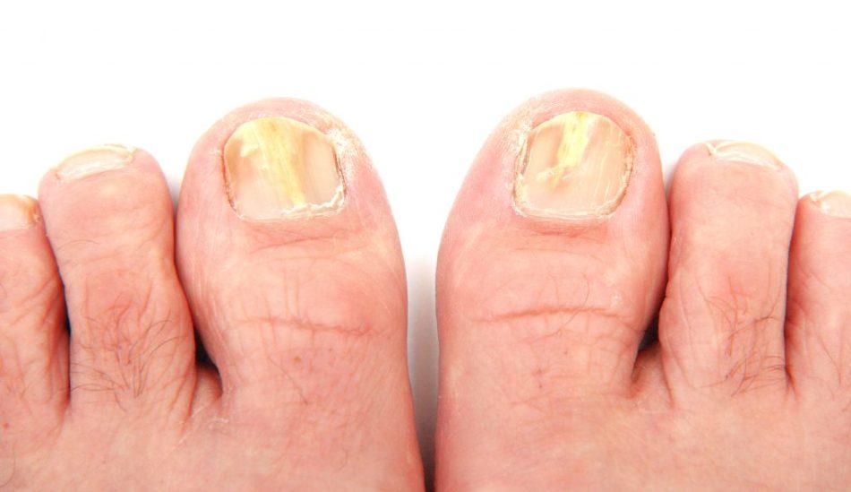 Искривление ногтей на ногах обычно начинается с большого пальца