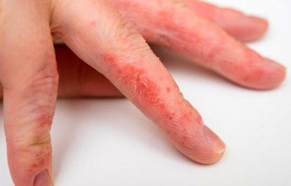 дерматит на руках