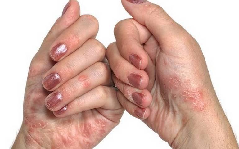 Дерматит на руках чем лечить