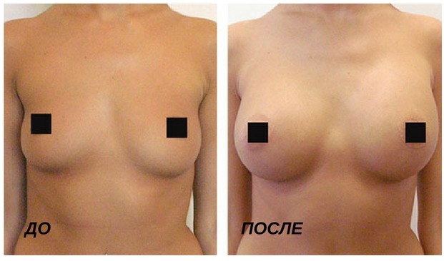 увеличения груди филлерами