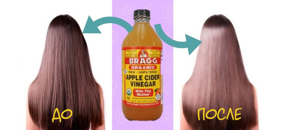 До и после применения яблочного уксуса