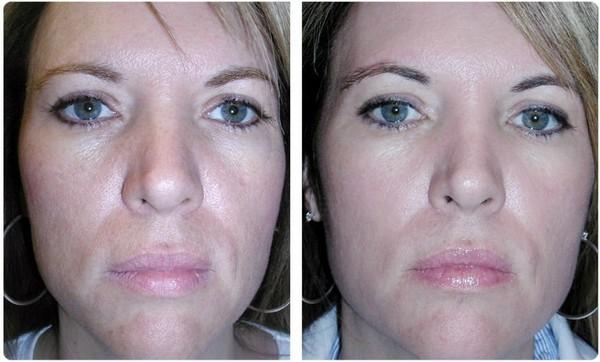 Фото до и после курса процедур газожидкостного пилинга №1