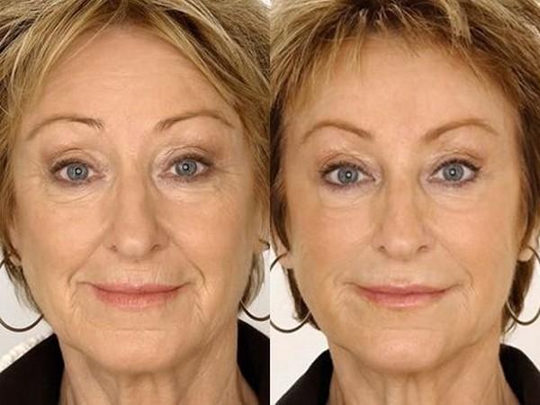 Фото до и после курса процедур с использованием препарата «Рестилайн» (Restylane) №2
