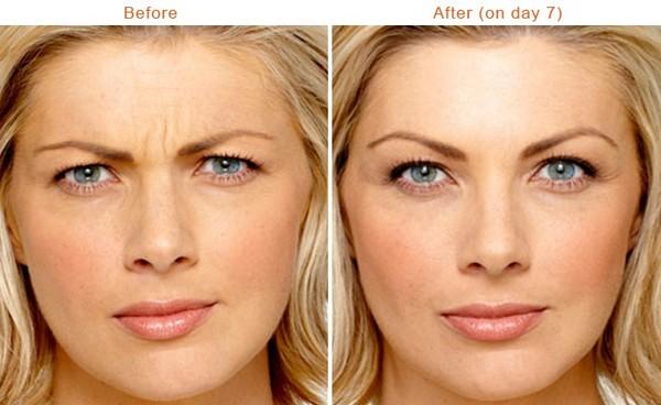 Фото до и после инъекций «Ксеомина» №3