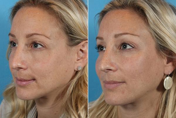 Фото до и после контурной пластики филлерами №3