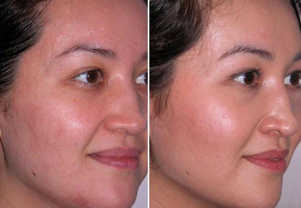 Фото до и после курса дарсонвализации №3