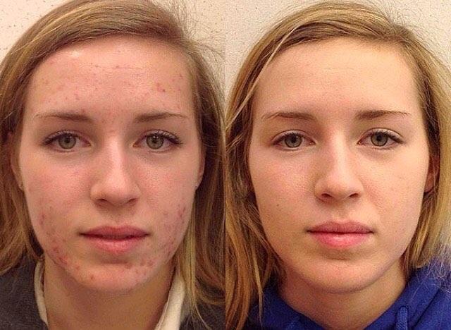 Демодекс на лице фото до и после