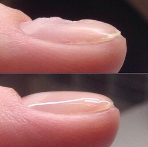 Как выровнять трамплинообразные ногти. Способы выравнивание ногтевой пластины
