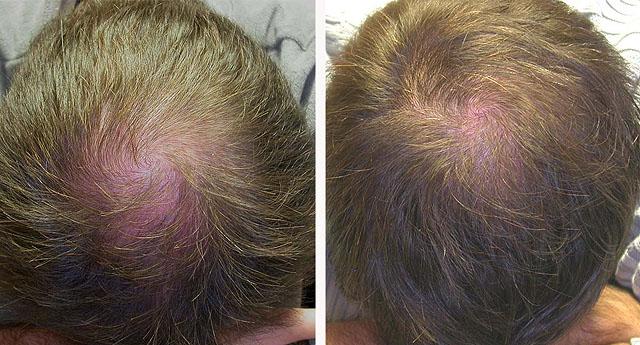 Эффект лечения волос мезотерапией