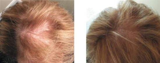 фото до и после мезотерапии головы