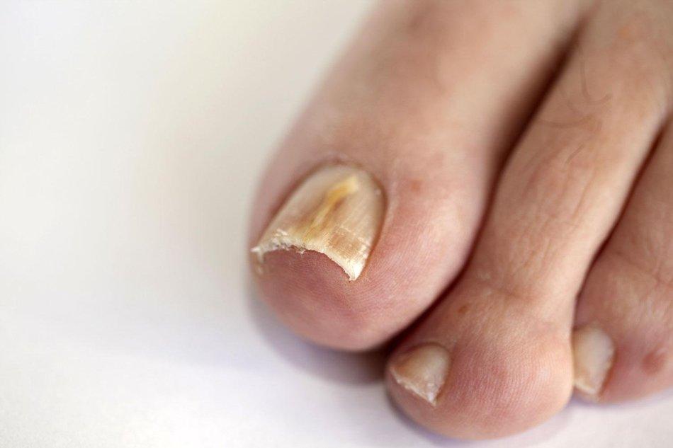 Грибок ногтей на ногах.