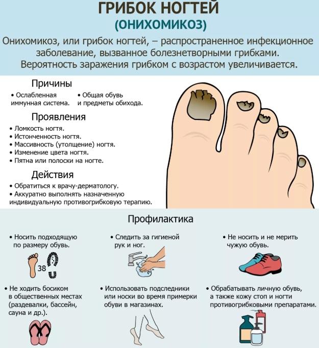 Грибок ногтей на ногах: Как выглядит. Симптомы, лечение препаратами, народными средствами