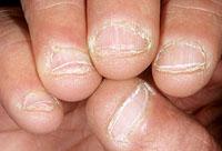 грызть ногти фото