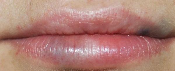 Губы до и после гиалуроновой кислоты фото до и после увеличения. Сколько держится эффект, когда проходят отеки