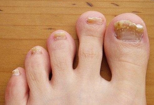 Лечение ногтевой пластины на руках