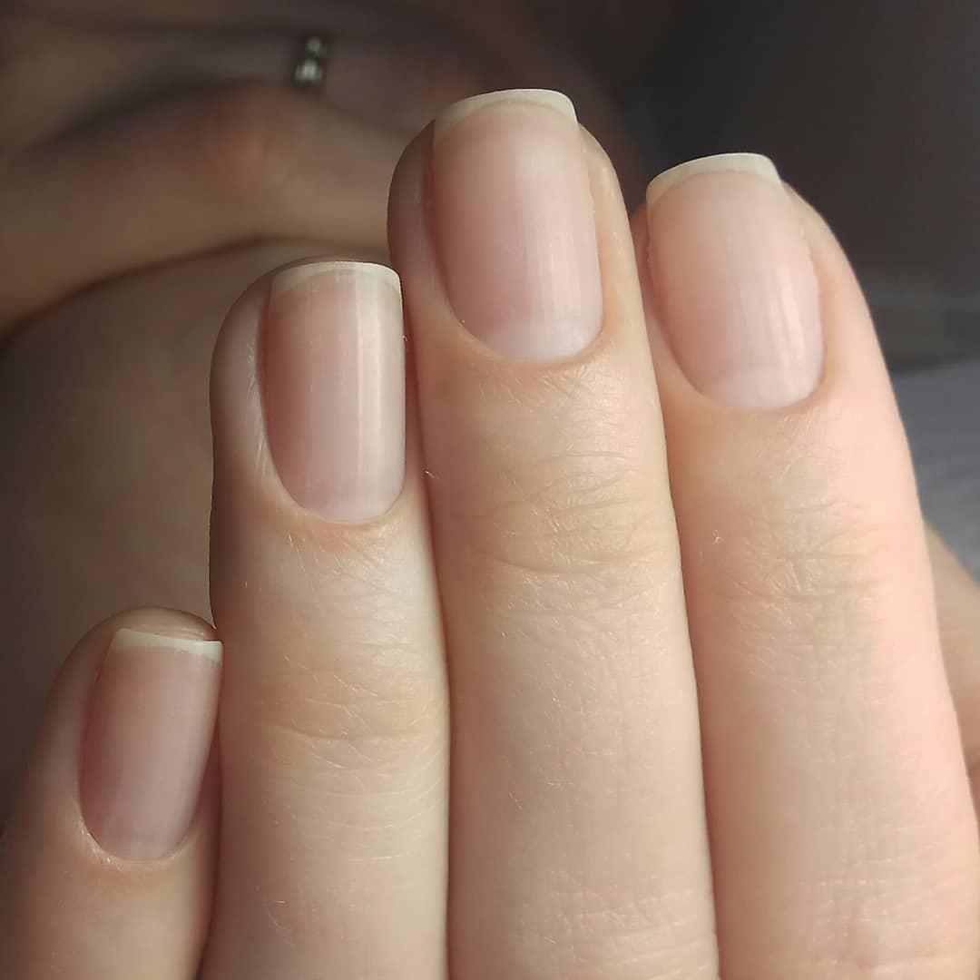 Как быстро растут ногти